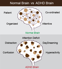 ADHD brain compared to normal