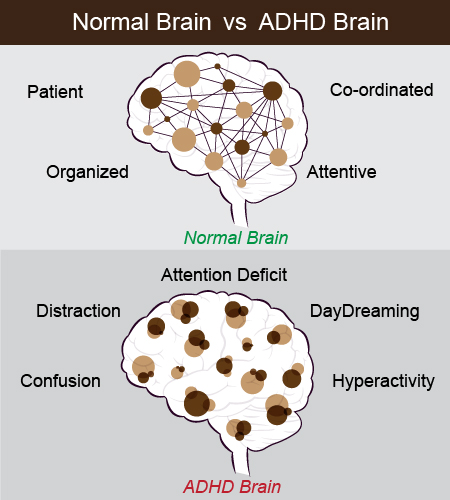 normal vs adhd brain